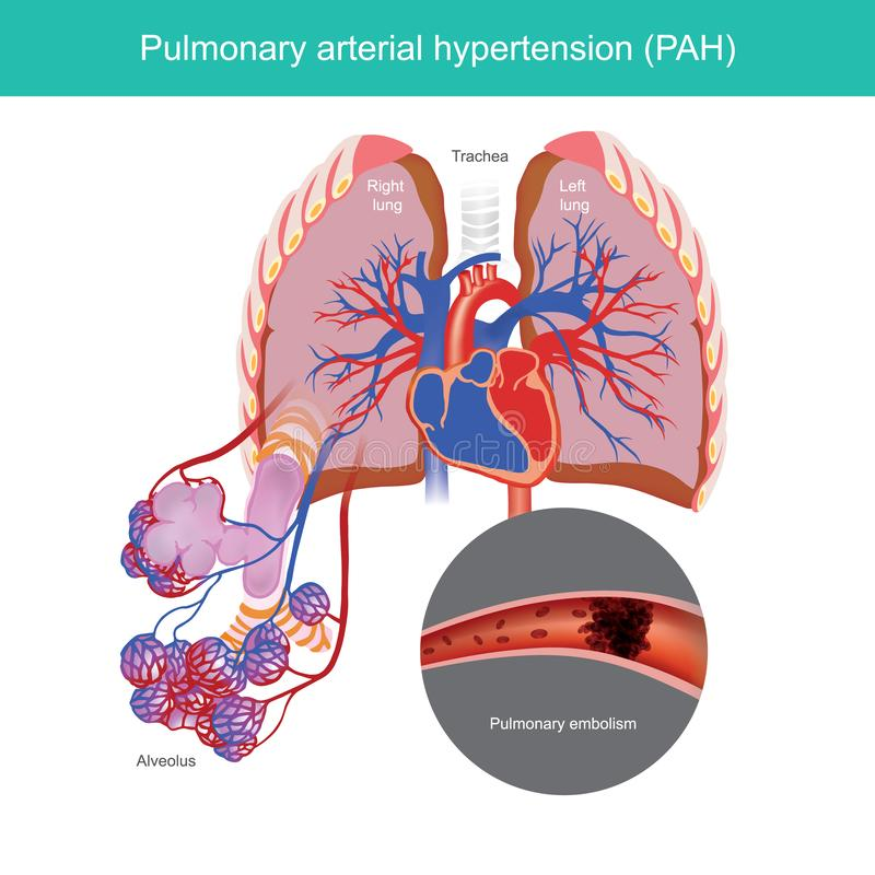 Pulmonary arterial hypertension. royalty free illustration