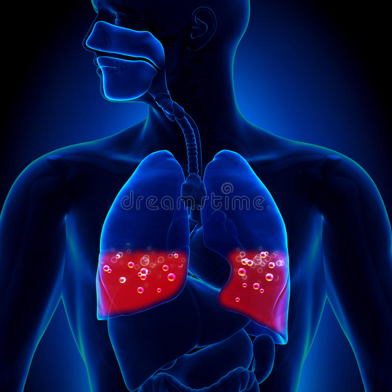 Pulmonary Edema - Blood In Lungs Stock Illustration