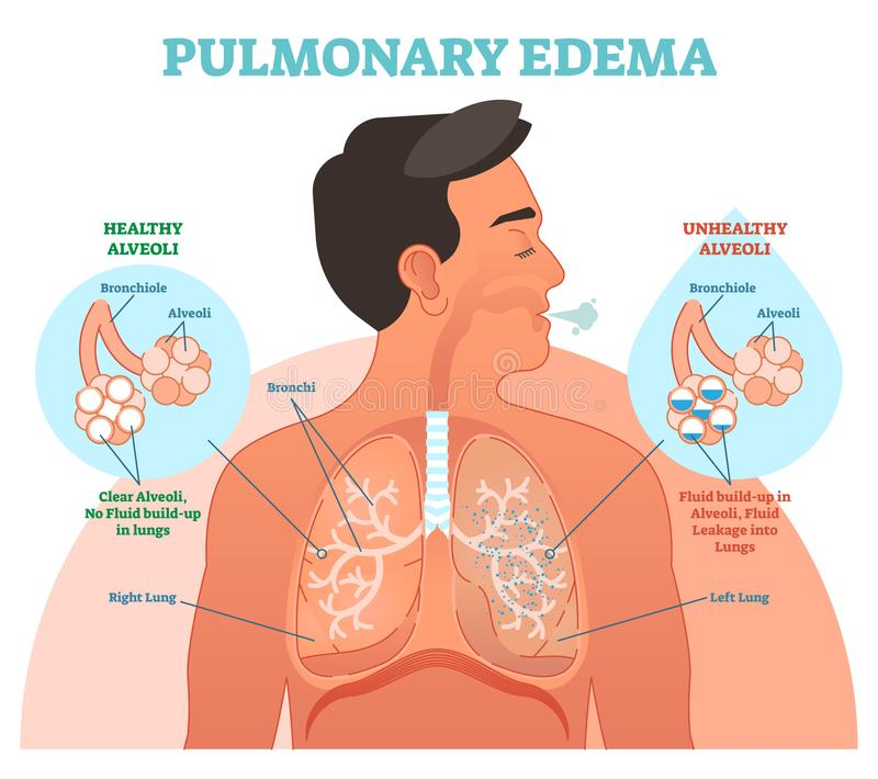 Pulmonary edema, lung problem vector illustration diagram. With bronchi and fluid leakage in alveoli. Chest cross section human body scheme. Health care royalty free illustration