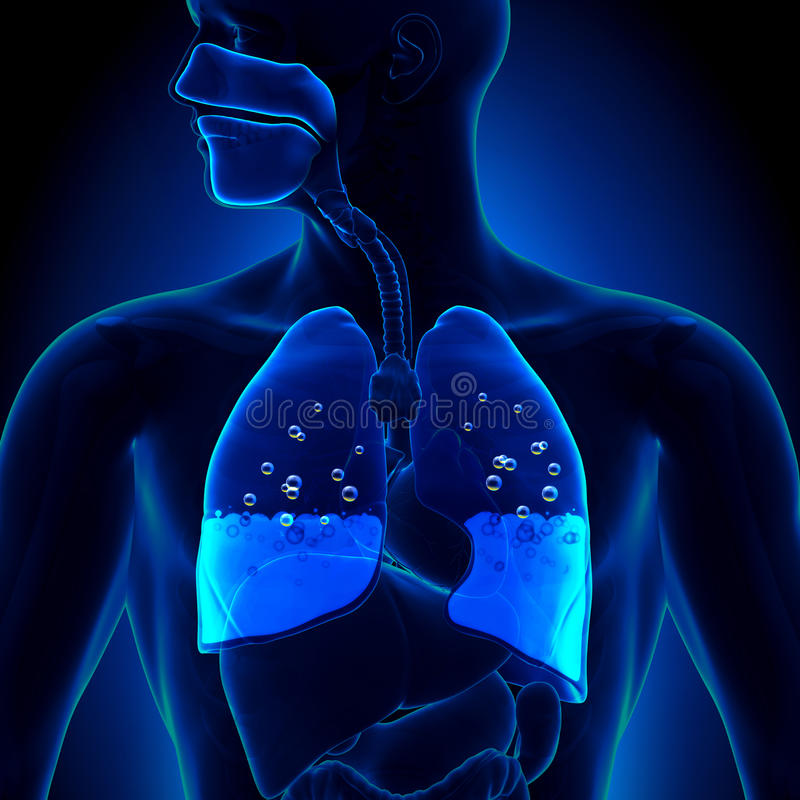 Pulmonary Edema - Water in Lungs vector illustration