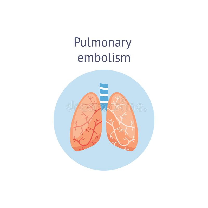Pulmonary embolism medical educational scheme vector illustration isolated. stock illustration