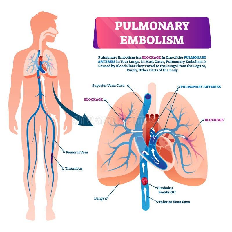 Pulmonary embolism vector illustration. Labeled lung blood blockage scheme vector illustration