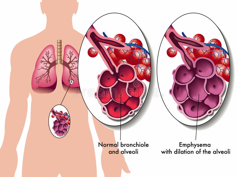 Pulmonary emphysema vector illustration