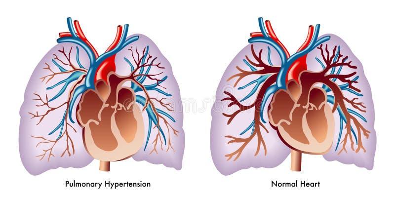 pulmonary högt blodtryck royaltyfri illustrationer