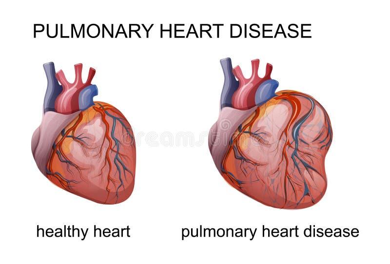 Pulmonary heart disease. Vector illustration of pulmonary heart disease. cardiology vector illustration