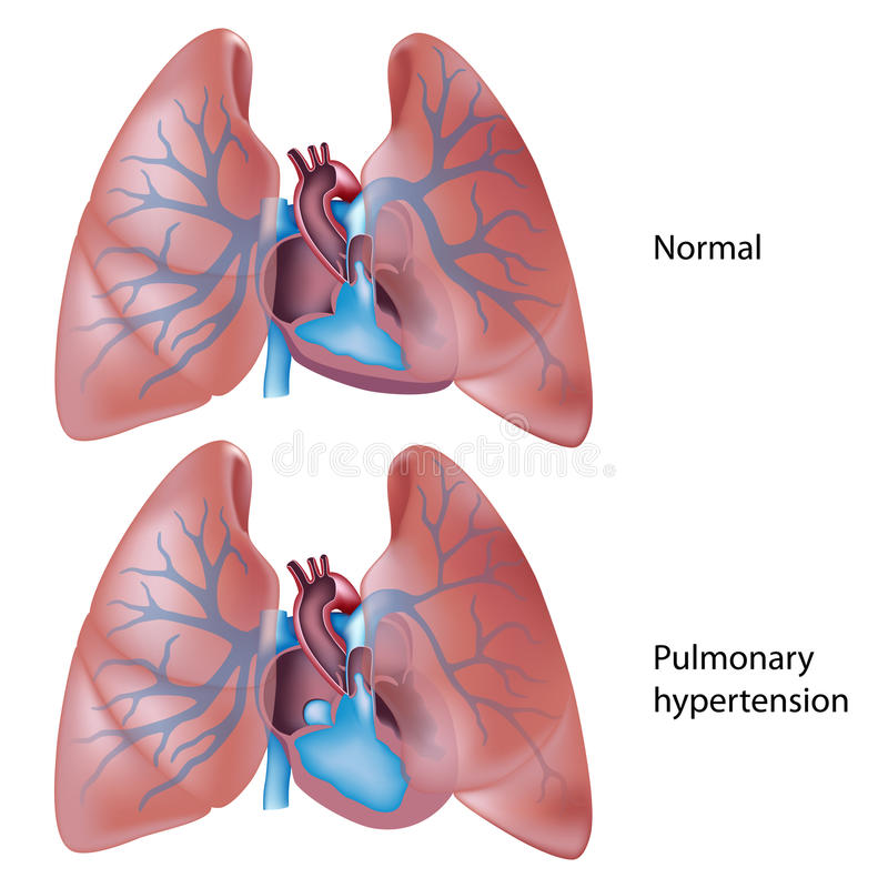 Pulmonary hypertension vector illustration