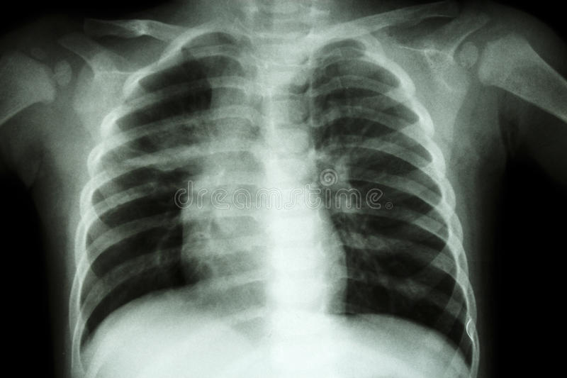 Pulmonary Tuberculosis ( Chest X-ray of child : show patchy infiltration at right middle lung ) royalty free stock photo