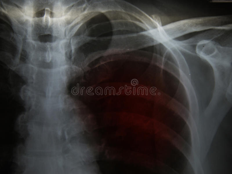 Pulmonary Tuberculosis TB : Chest x-ray show alveolar infilt stock images