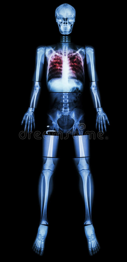 Pulmonary Tuberculosis(TB)(X-ray whole body). Pulmonary Tuberculosis(TB)(X-ray whole body : head skull neck spine shoulder arm elbow forearm wrist hand finger stock photography