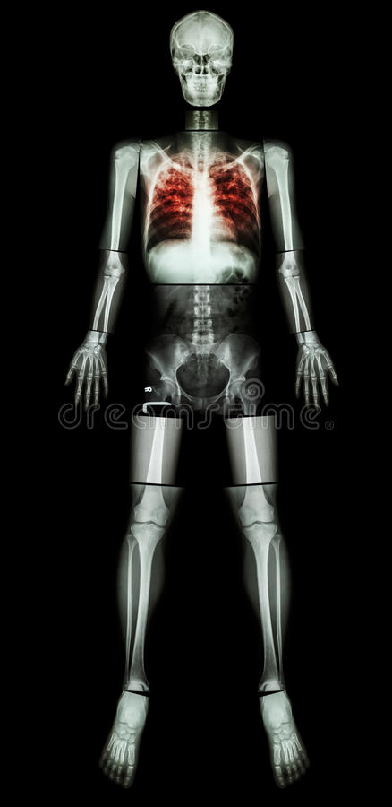 Pulmonary Tuberculosis(TB)(X-ray whole body). Pulmonary Tuberculosis(TB)(X-ray whole body : head skull neck spine shoulder arm elbow forearm wrist hand finger stock photo