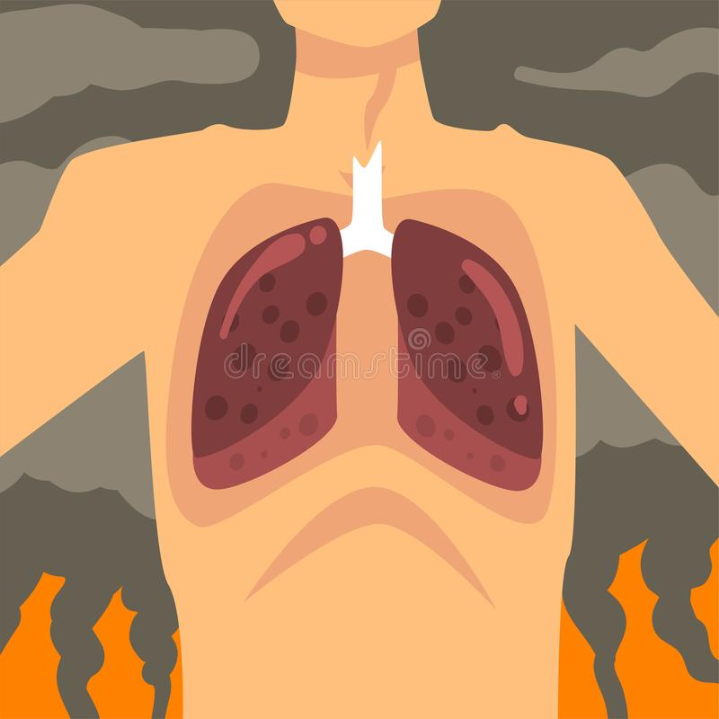Pulmones humanos, gente que sufre de la niebla con humo industrial, enfermedad respiratoria de la contaminación atmosférica de la ilustración del vector