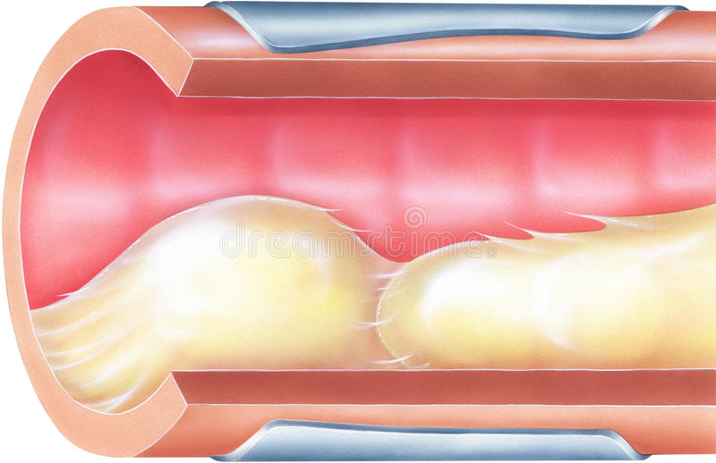 Pulmones - moco bronquial que causa la obstrucción de vía aérea ilustración del vector