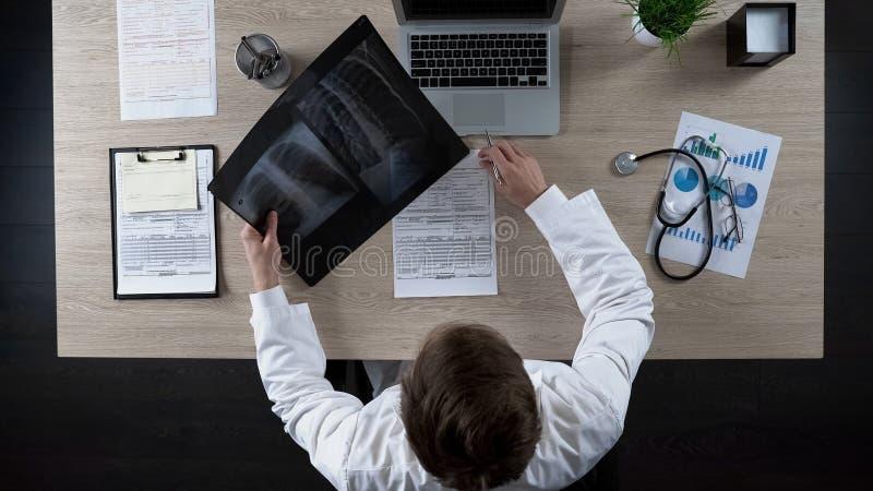 Pulmonologist que olha o raio X dos pulmões, pensando sobre o diagnóstico para o paciente fotografia de stock royalty free