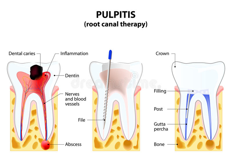 Pulpitis royaltyfri illustrationer