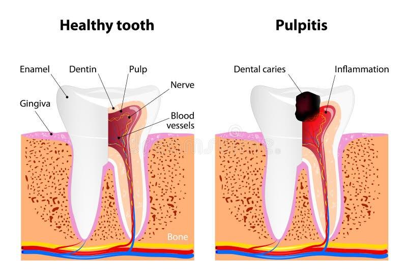 Pulpitis en Gezonde tand vector illustratie