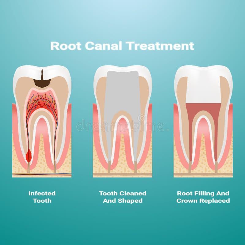 Pulpitis thérapie de canal radiculaire De la pulpe infectée est enlevée de la dent et l'espace occupé par lui est nettoyé et remp illustration libre de droits