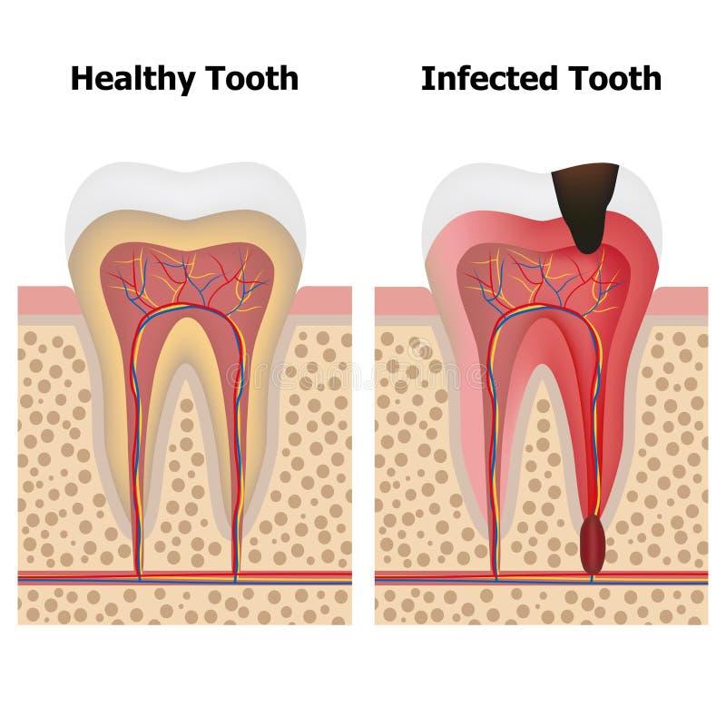 Pulpitis y diente sano ilustración del vector