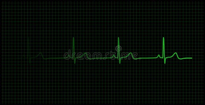 Pulsação do coração no vetor do monitor ilustração do vetor