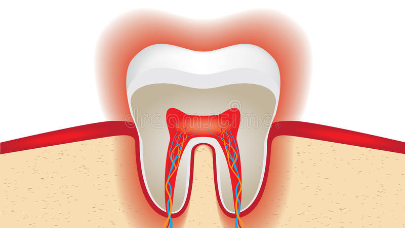 Pulsation of sensitive tooth enamel royalty free illustration
