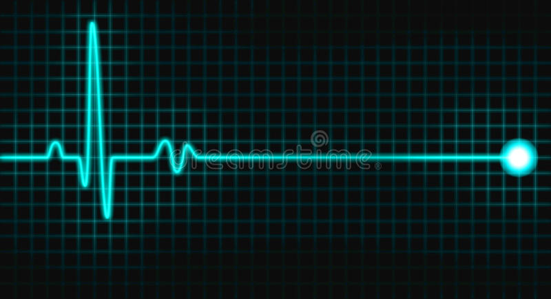 Download Pulse Graph Stock Image - Image: 22516221