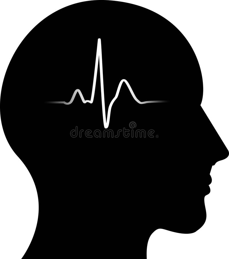 Pulse in the head stock illustration