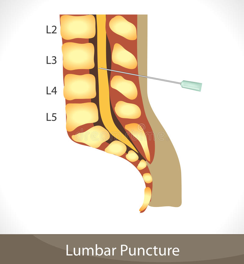 Punctura lombar ilustração stock
