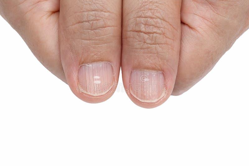 Punti bianchi e creste verticali sulle unghie immagini stock