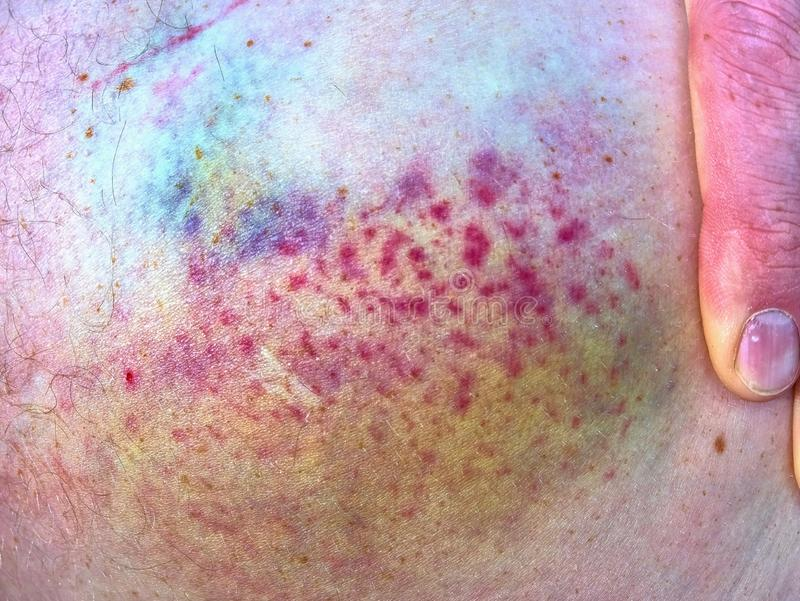 Purple bruise on the skin, close up view. Colorful hematoma. stock photography