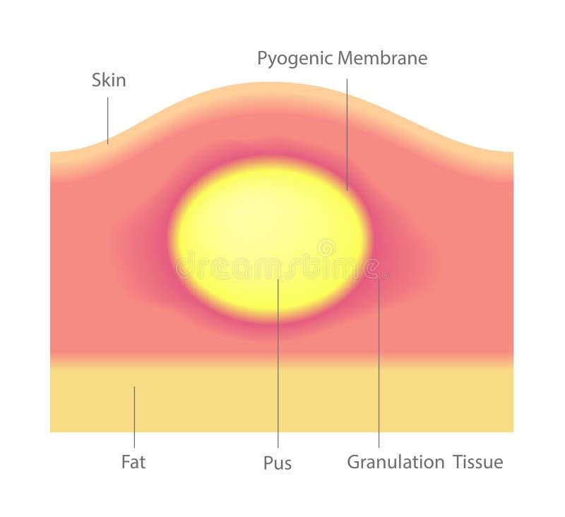 Pus et acné dans le vecteur de peau illustration libre de droits