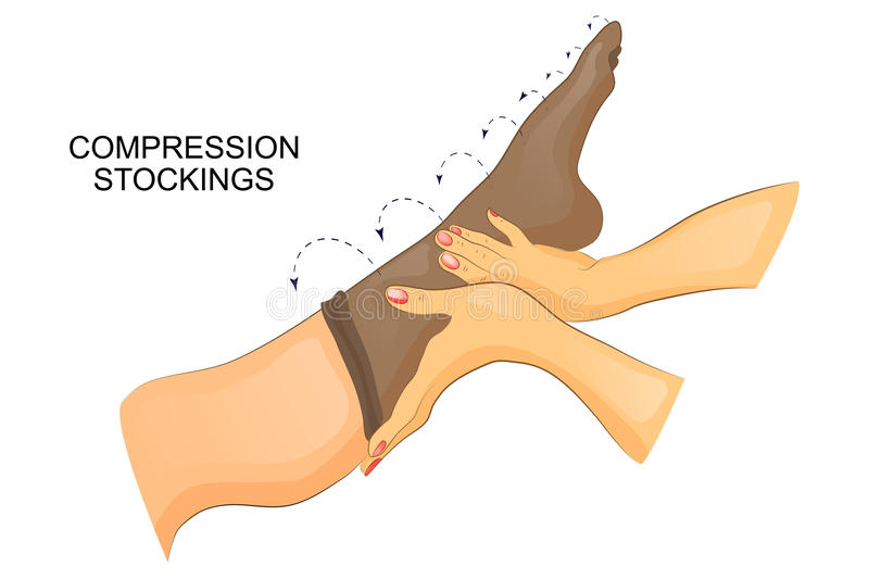 Putting on compression stocking on the leg vector illustration