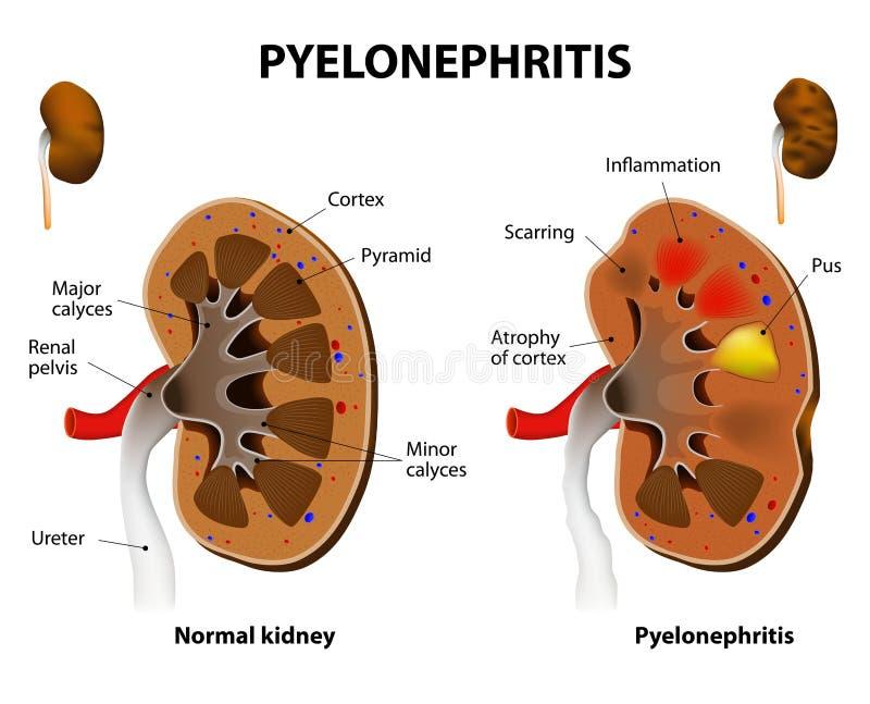 Pyelonephritis royalty ilustracja