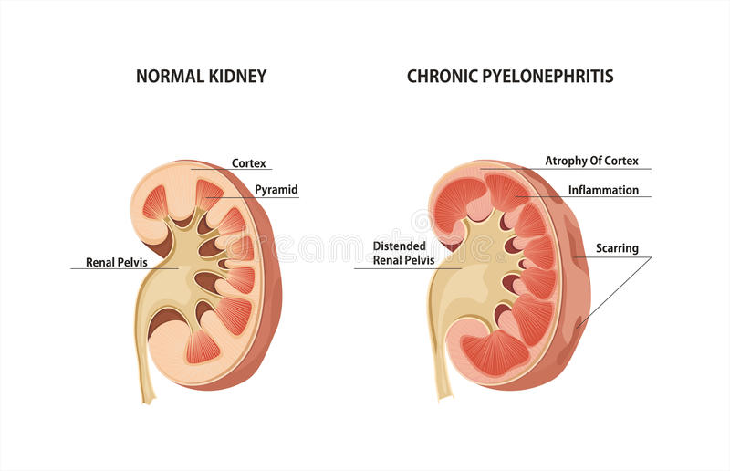 Pyelonephritis royaltyfri illustrationer