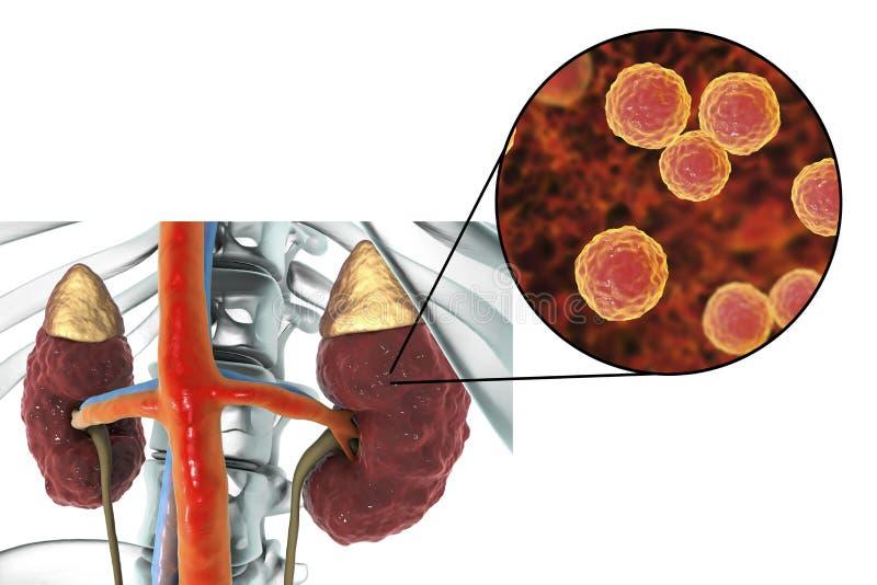 Pyelonephritis door bacteriën dieEnterococcus wordt veroorzaakt stock illustratie