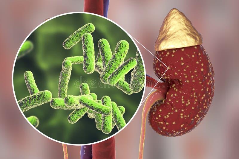 Pyelonephritis, medicinskt begrepp och närbildsikt av bakterier, det gemensamma kausativa medlet av njureinfektion royaltyfri bild