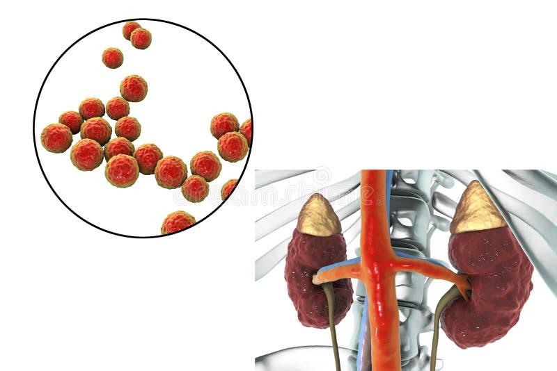 Pyelonephritis som orsakas av bakterieenterococcusen stock illustrationer