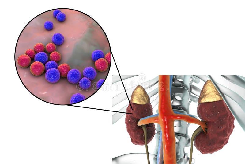 Pyelonephritis som orsakas av bakterieenterococcusen royaltyfri illustrationer