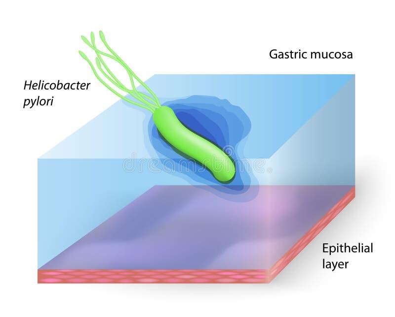 Download Pylori van Helicobacter vector illustratie. Illustratie bestaande uit darm - 54082686