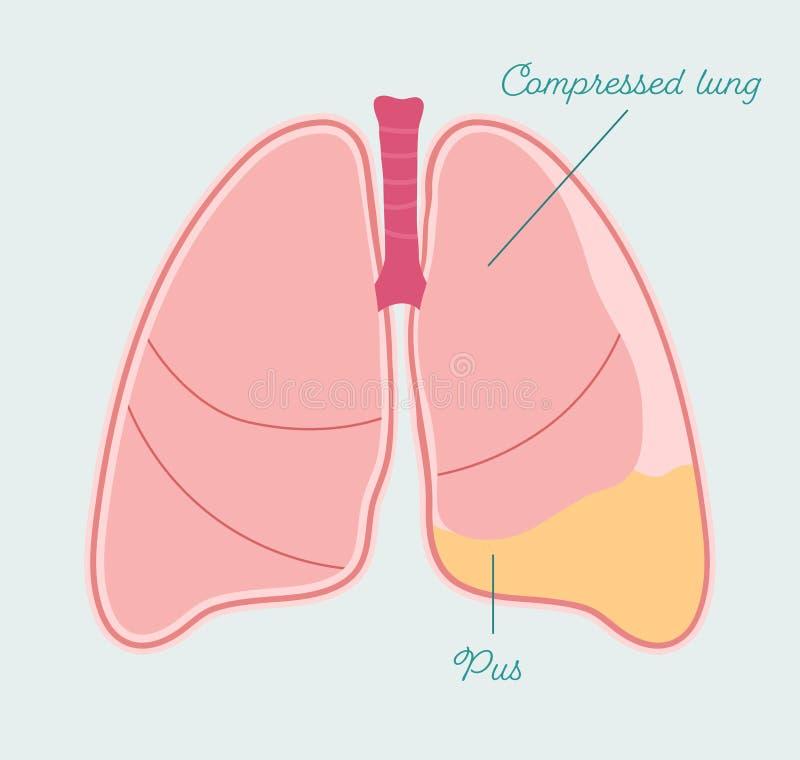 lung pus