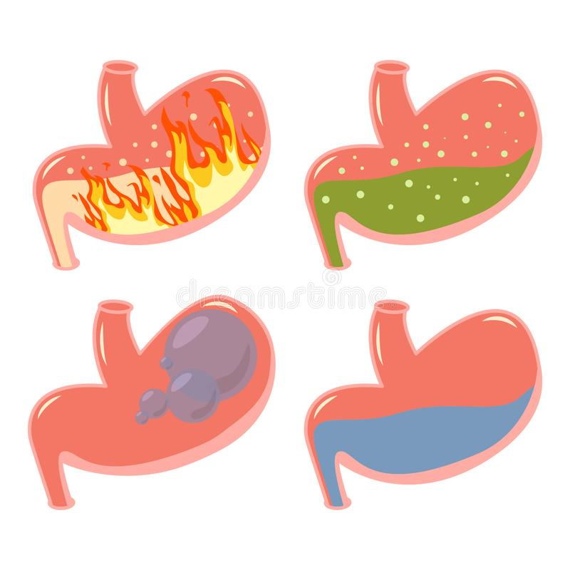 Pyrosis stomach medical set. Fire disorder, gastric acid reflux, Abdominal bloated ball, green liquid stock illustration