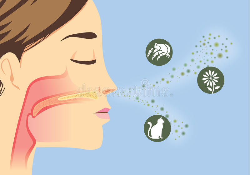 Qualcosa che causa allergico illustrazione vettoriale