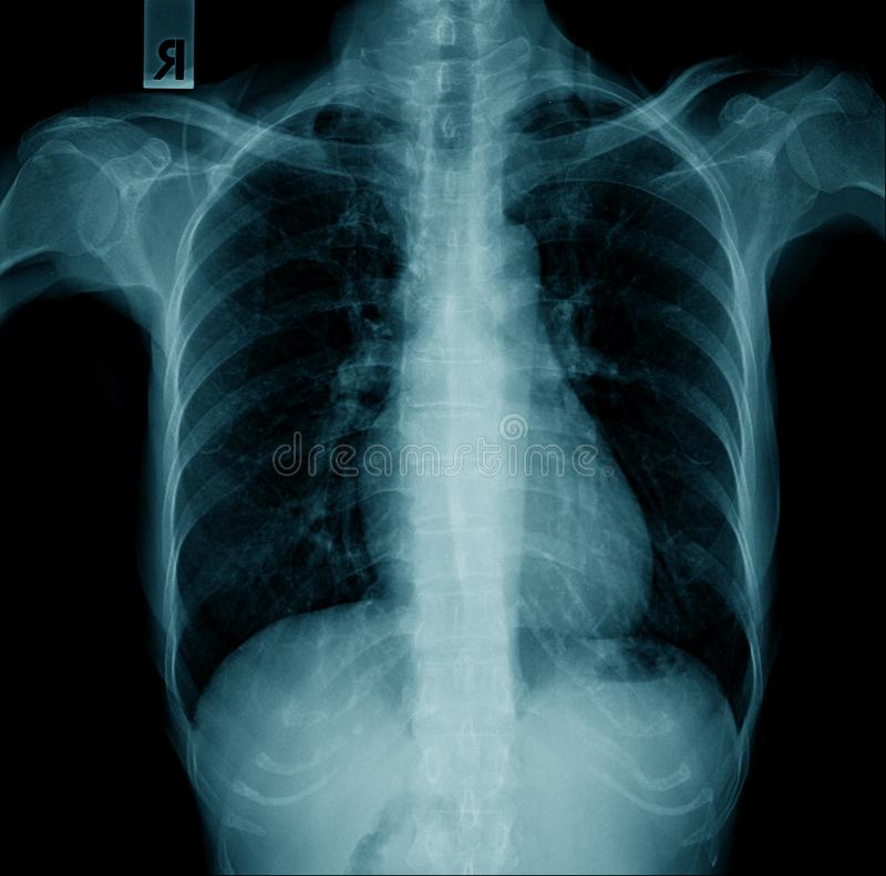 Qualidade de raio X de caixa boa ilustração stock