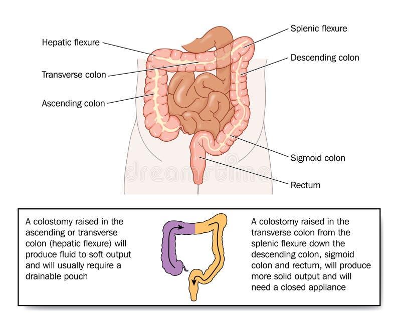 Qualité de selles de divers colostomies illustration de vecteur