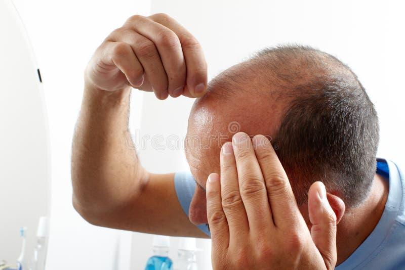 Queda de cabelo fotografia de stock