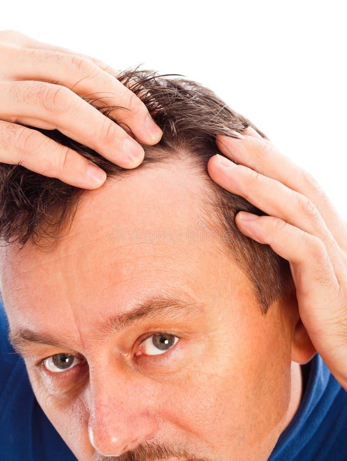Queda de cabelo androgênica fotografia de stock royalty free
