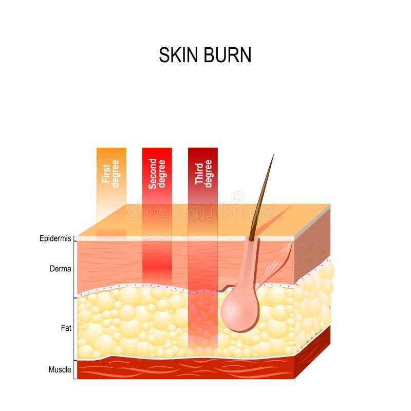 Queimadura da pele Três graus de queimaduras ilustração do vetor