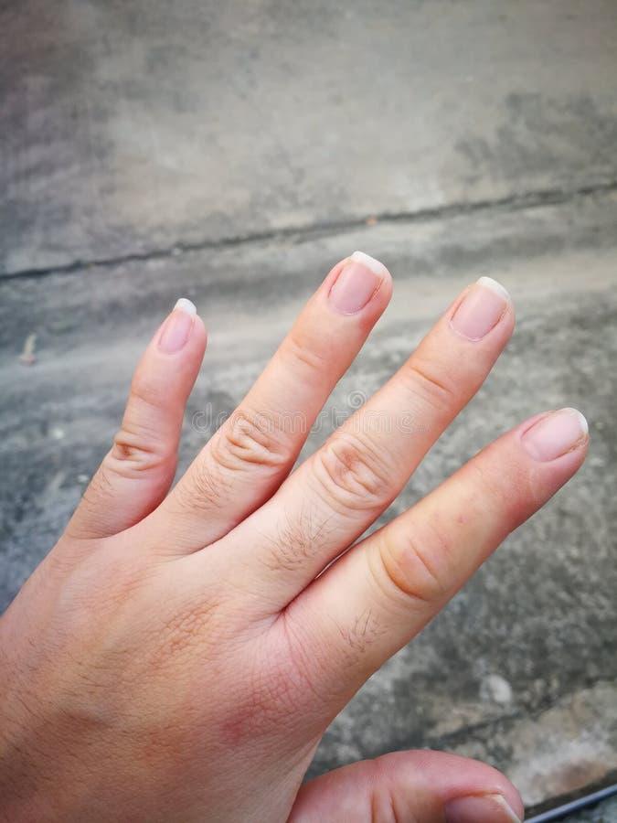 Queimaduras da pele do dedo indicador fotos de stock