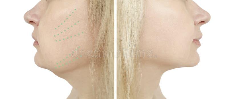 Queixo da mulher, antes e depois do problema que aperta o procedimento do restauro da remoção imagem de stock