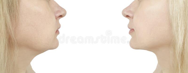 queixo da mulher, antes e depois do procedimento fotos de stock