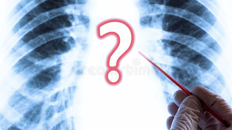 The question of health or lung disease. Medical concept. Hand in glove with a red pointer on the background of chest X-ray. stock images
