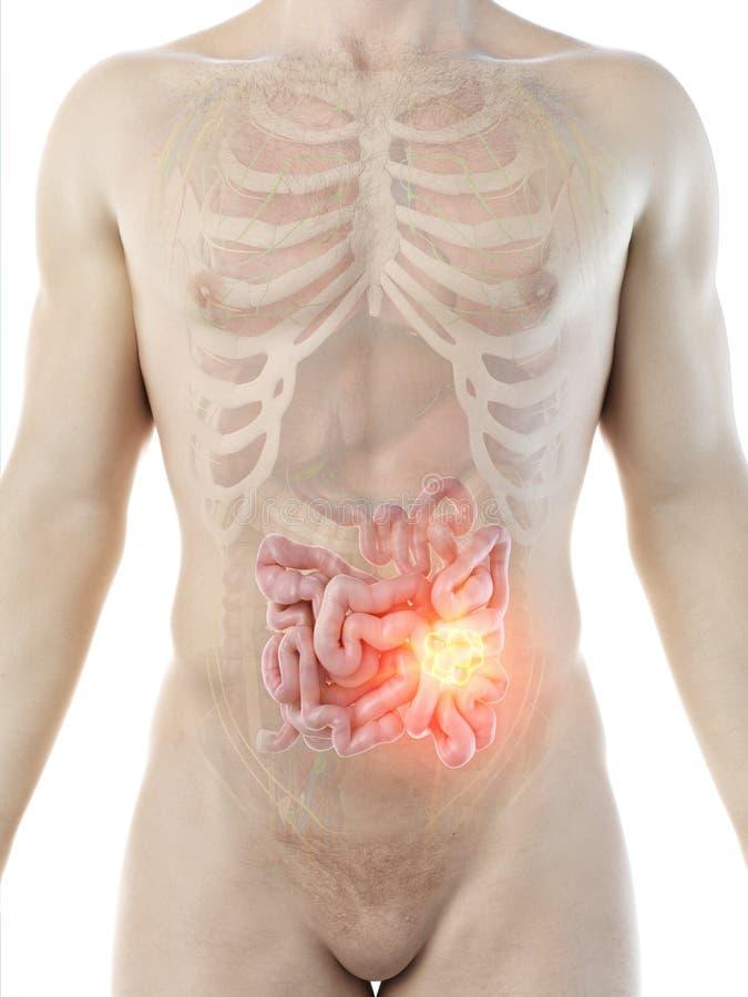 ?quipe la tumeur d'intestin gr?le illustration stock